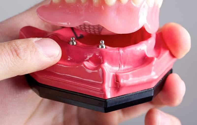 Mini Dental Implants in Plastic Model